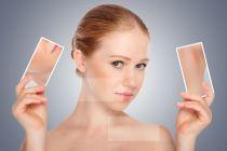 Cómo eliminar los Granitos de la Cara