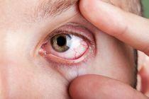 Cómo Aliviar los Ojos Rojos