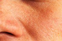 Cómo preparar mascarillas caseras para los poros dilatados. Recetas naturales para los poros dilatados. Cómo mejorar la piel con poros dilatados